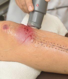 post operative knee
