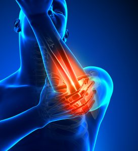 elbow condition physical therapy clifton Park