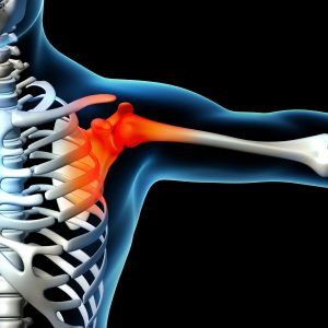 shoulder condition physical therapy clifton Park